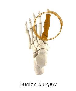 Foot Surgery Perth - Bunion Surgery Perth - Logo